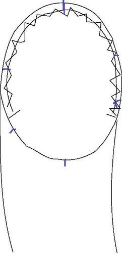 Armkugel.jpg.ae5c9b1b18f64da857981c21557b0a82.jpg